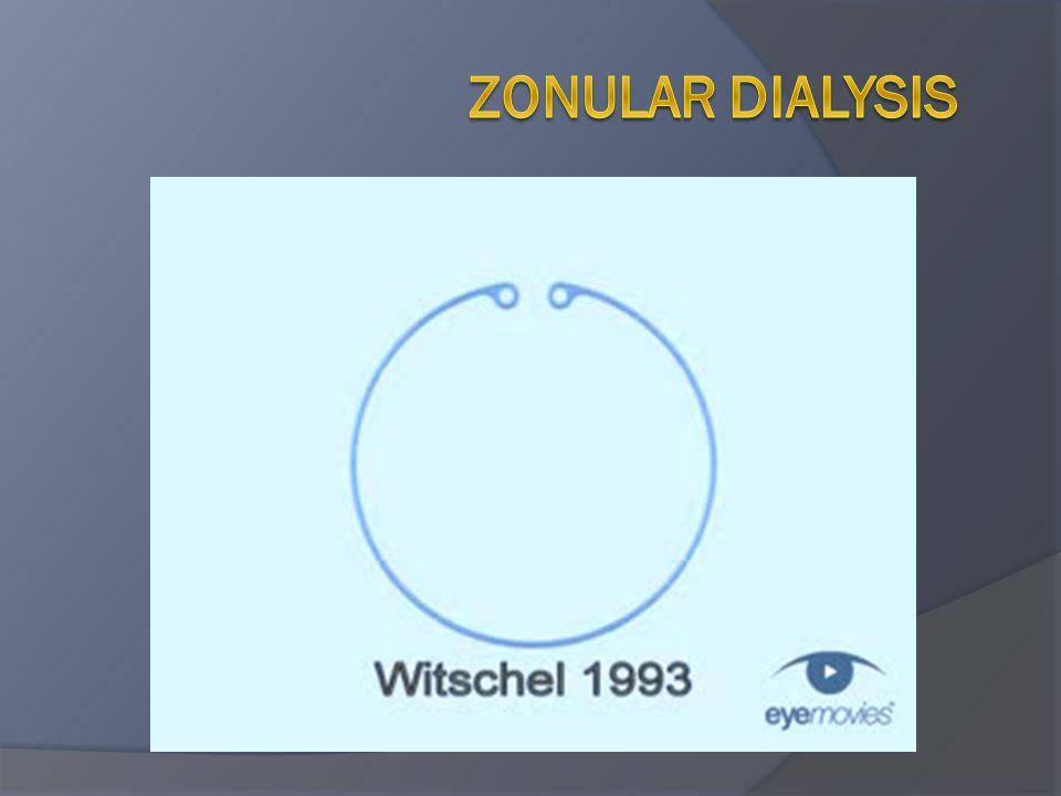 Zonular dialysis