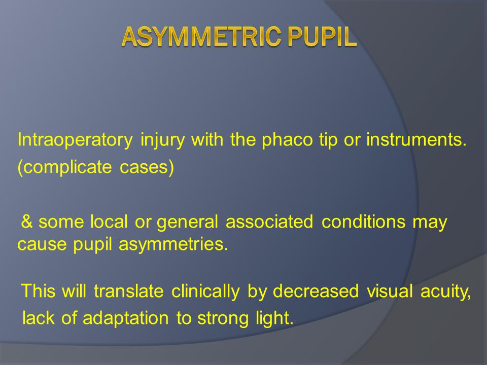 Asymmetric pupil Intraoperatory injury with the phaco tip or instruments. (complicate cases)