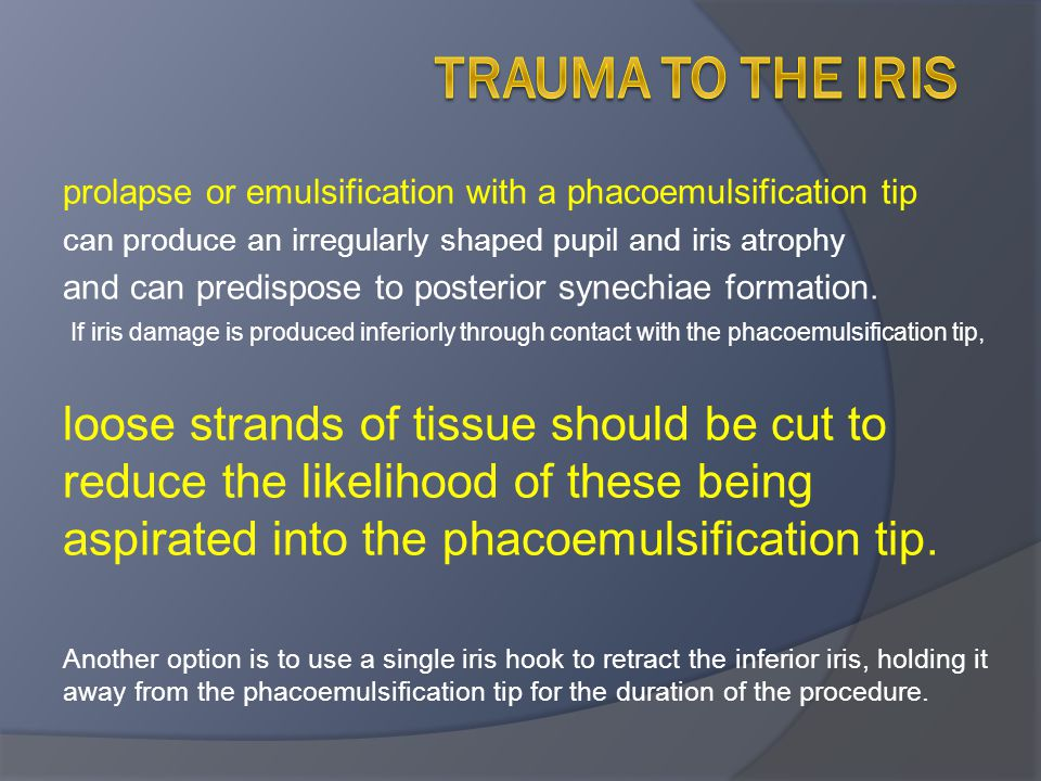 Trauma to the iris prolapse or emulsification with a phacoemulsification tip. can produce an irregularly shaped pupil and iris atrophy.