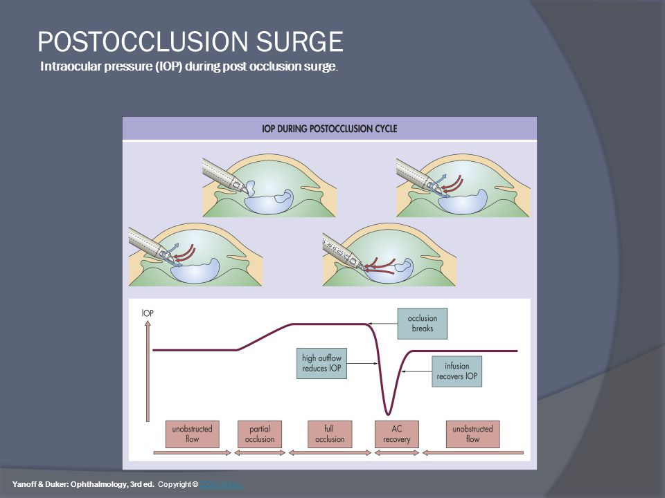 POSTOCCLUSION SURGE Intraocular pressure (IOP) during post occlusion surge.