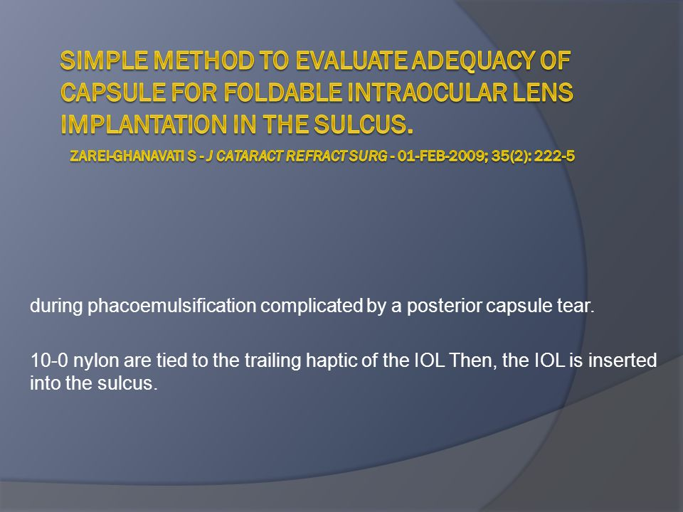 Simple method to evaluate adequacy of capsule for foldable intraocular lens implantation in the sulcus. Zarei-Ghanavati S - J Cataract Refract Surg - 01-FEB-2009; 35(2): 222-5