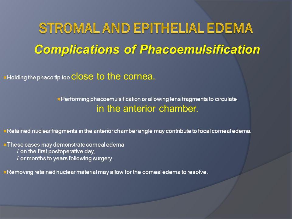 Stromal and Epithelial Edema