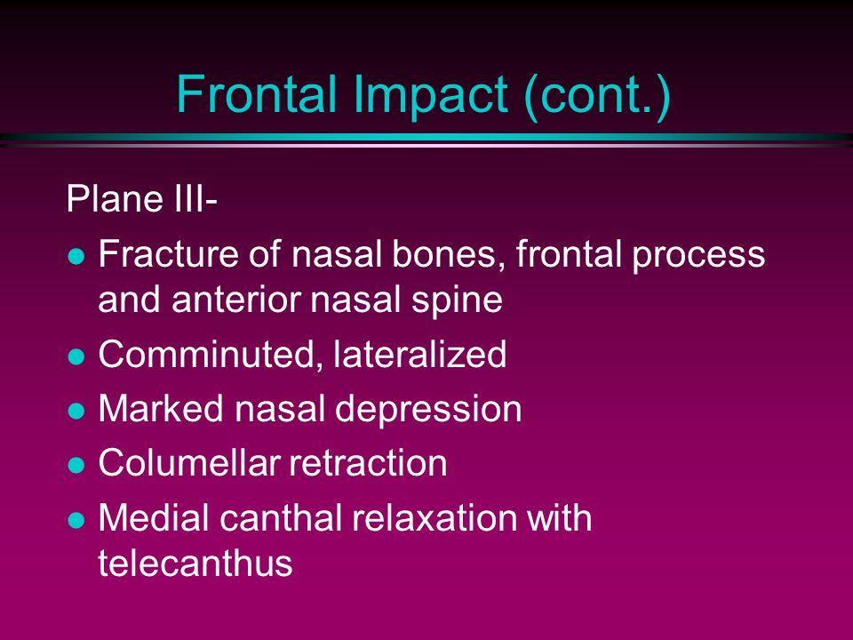 Frontal Impact (cont.) Plane III-