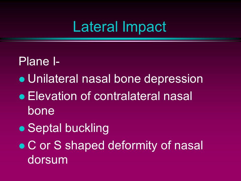 Lateral Impact Plane I- Unilateral nasal bone depression