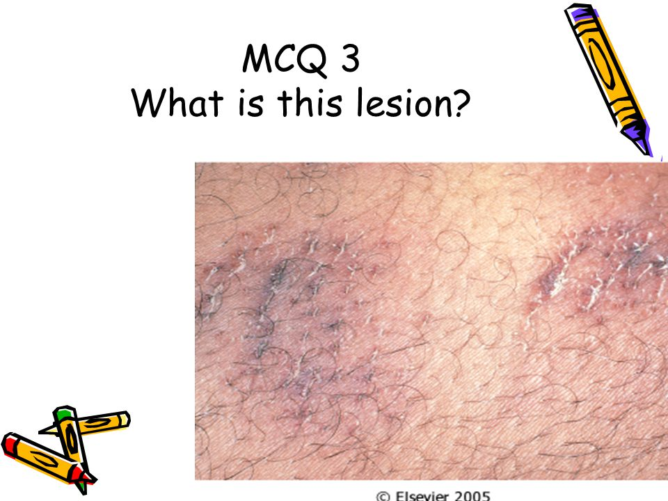 MCQ 3 What is this lesion