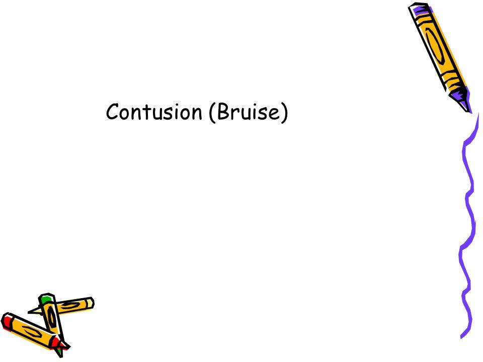 Contusion (Bruise)