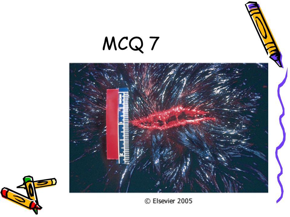 MCQ 7