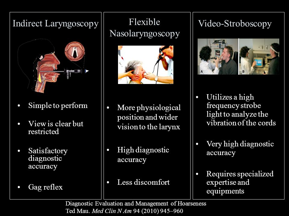 Indirect Laryngoscopy