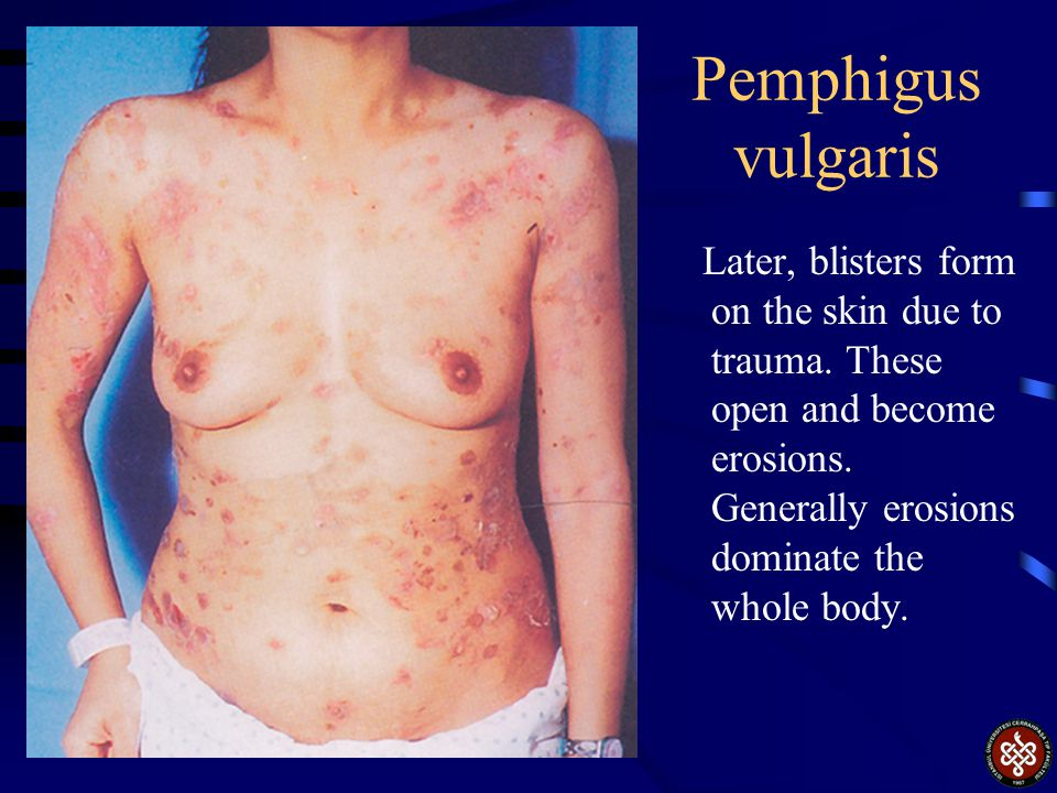 Pemphigus vulgaris Later, blisters form on the skin due to trauma.