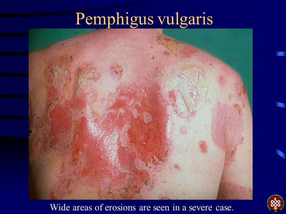 Wide areas of erosions are seen in a severe case.