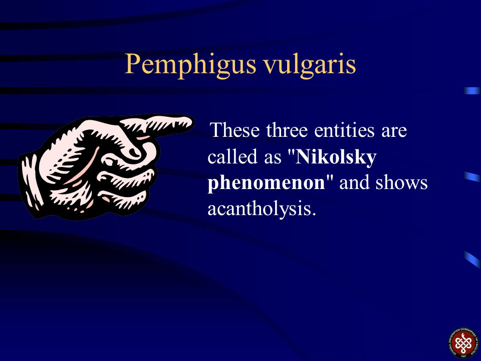 Pemphigus vulgaris These three entities are called as Nikolsky phenomenon and shows acantholysis.