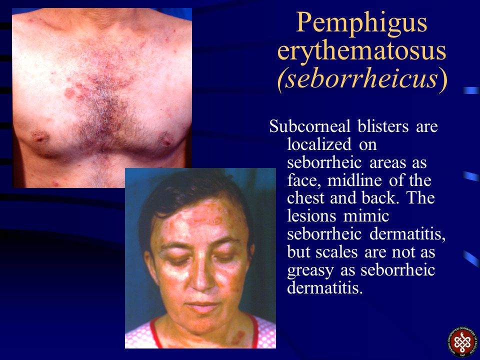Pemphigus erythematosus (seborrheicus)