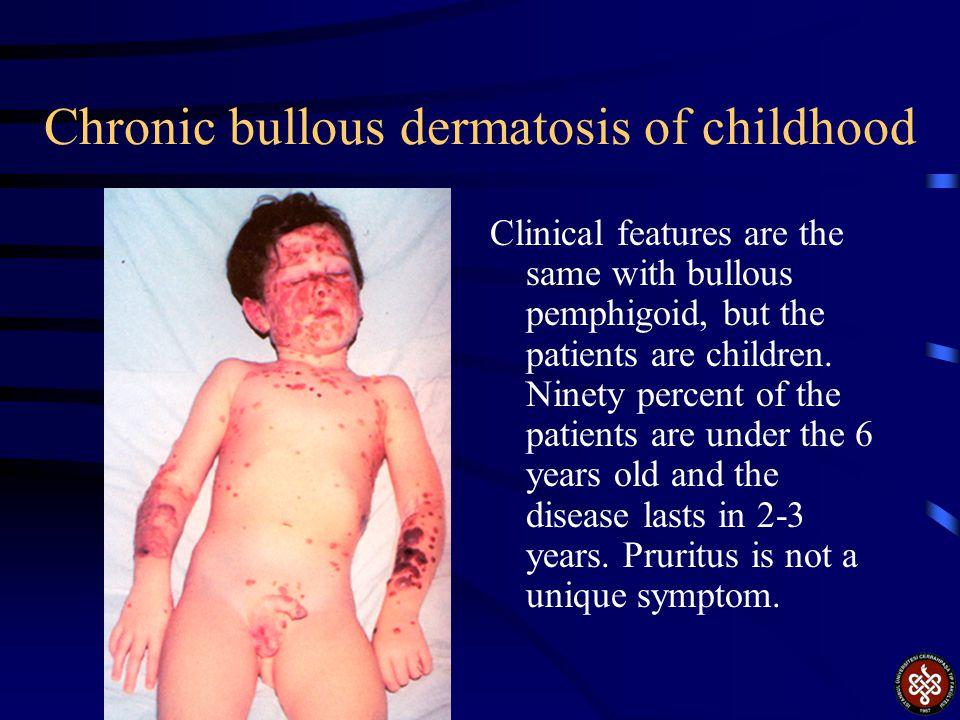 Chronic bullous dermatosis of childhood