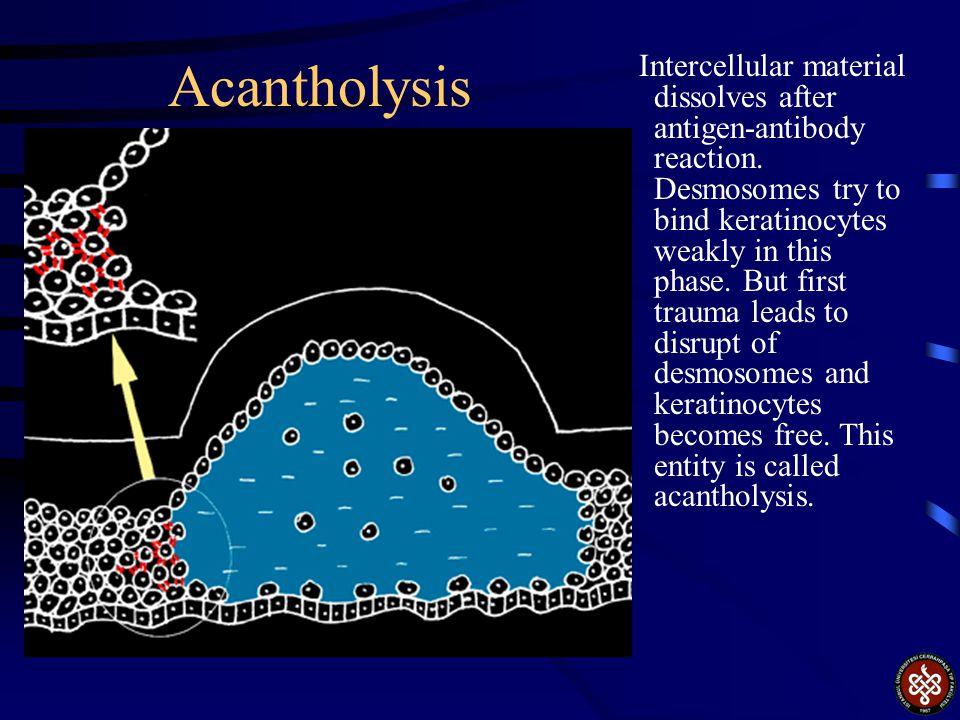 Acantholysis