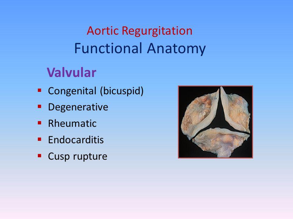 Aortic Regurgitation Functional Anatomy