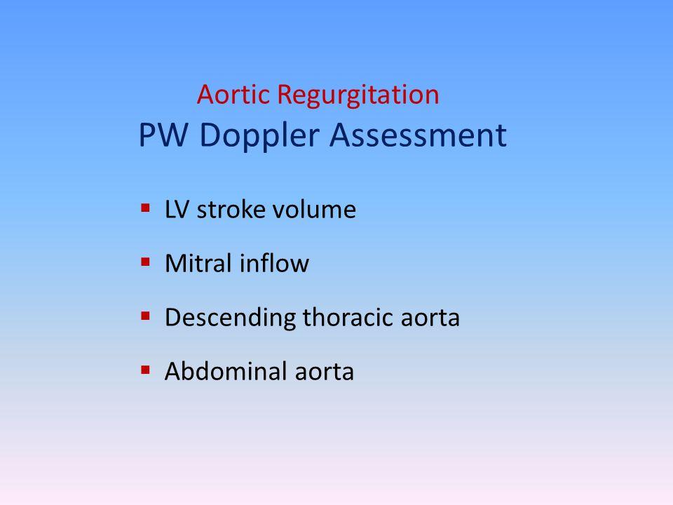 Aortic Regurgitation PW Doppler Assessment