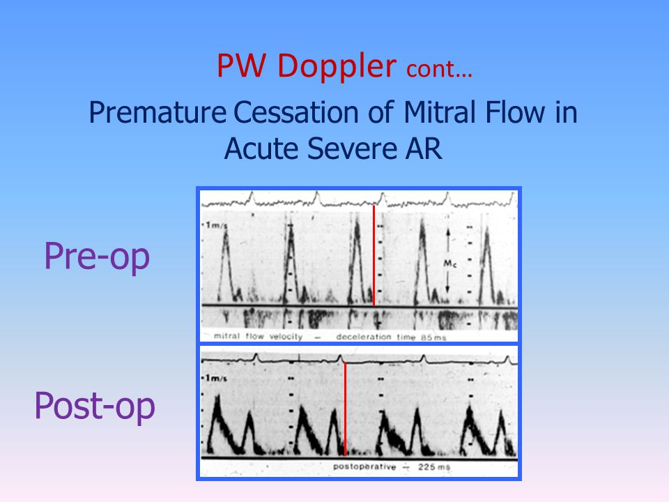 Premature Cessation of Mitral Flow in Acute Severe AR