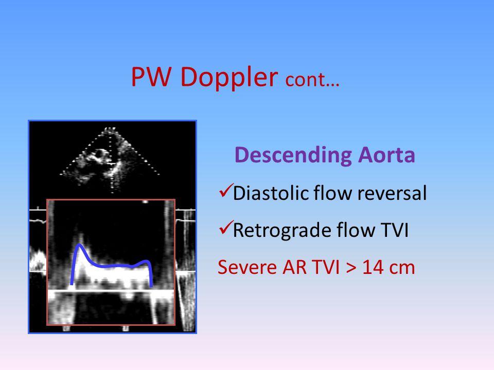 PW Doppler cont… Descending Aorta Diastolic flow reversal