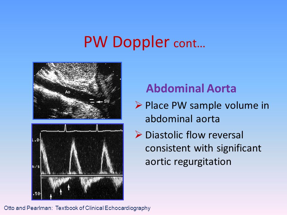 PW Doppler cont… Abdominal Aorta