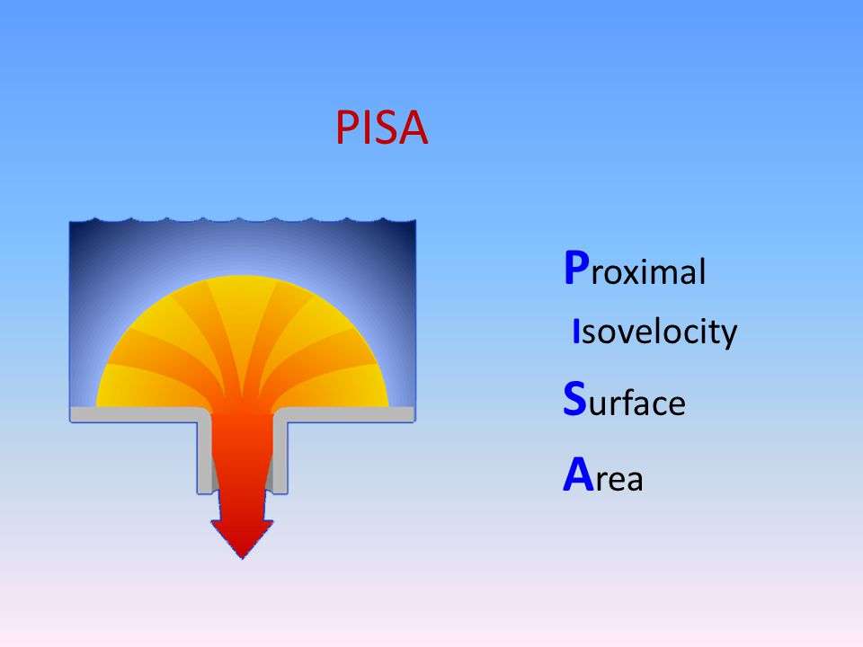 PISA Proximal Isovelocity Surface Area