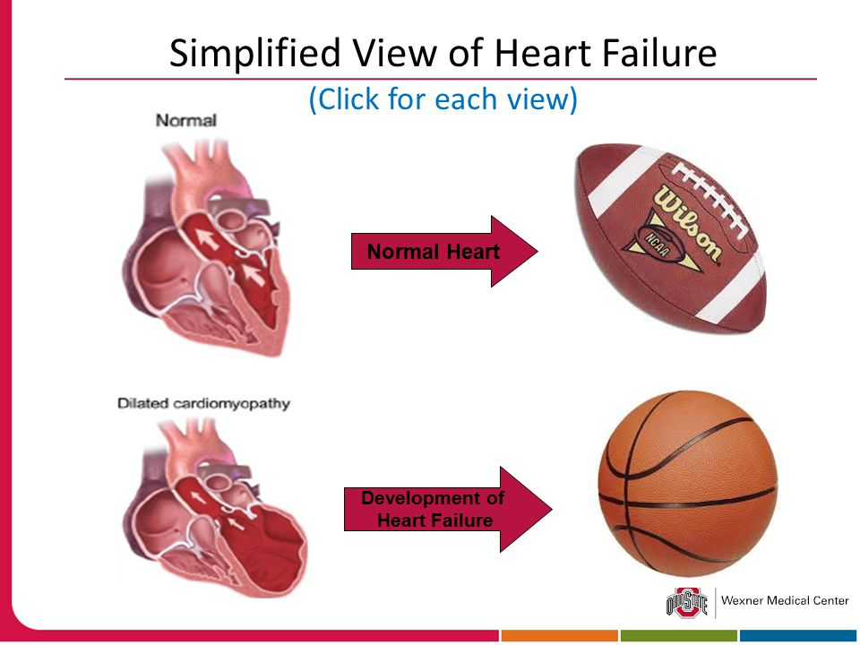 Simplified View of Heart Failure