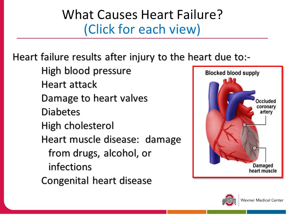 What Causes Heart Failure (Click for each view)