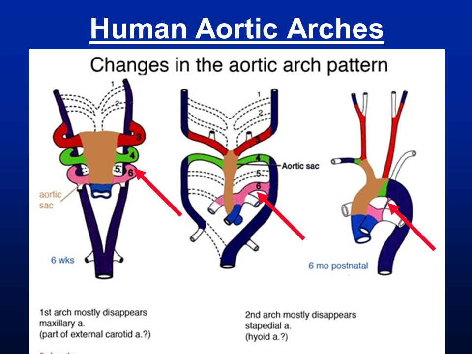 Human Aortic Arches