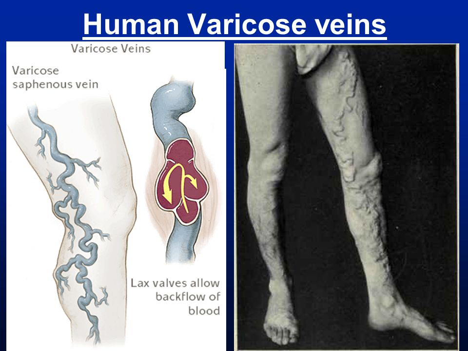 Human Varicose veins