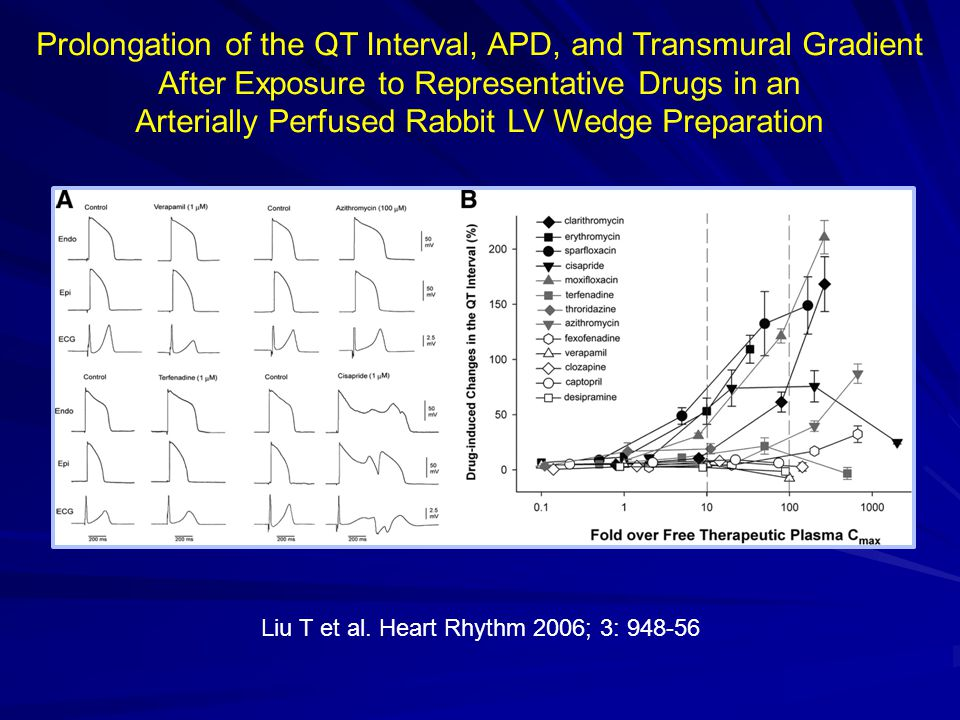 Arterially Perfused Rabbit LV Wedge Preparation