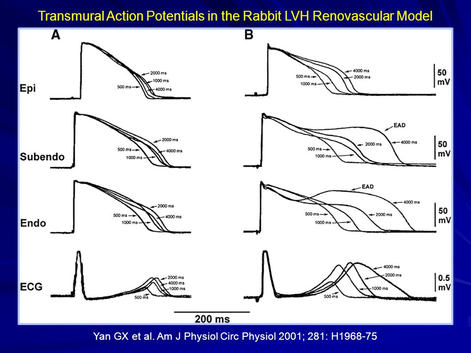 Transmural Action Potentials in the Rabbit LVH Renovascular Model