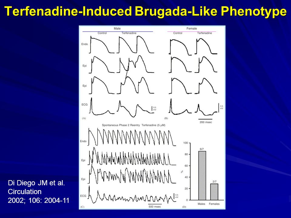 Terfenadine-Induced Brugada-Like Phenotype