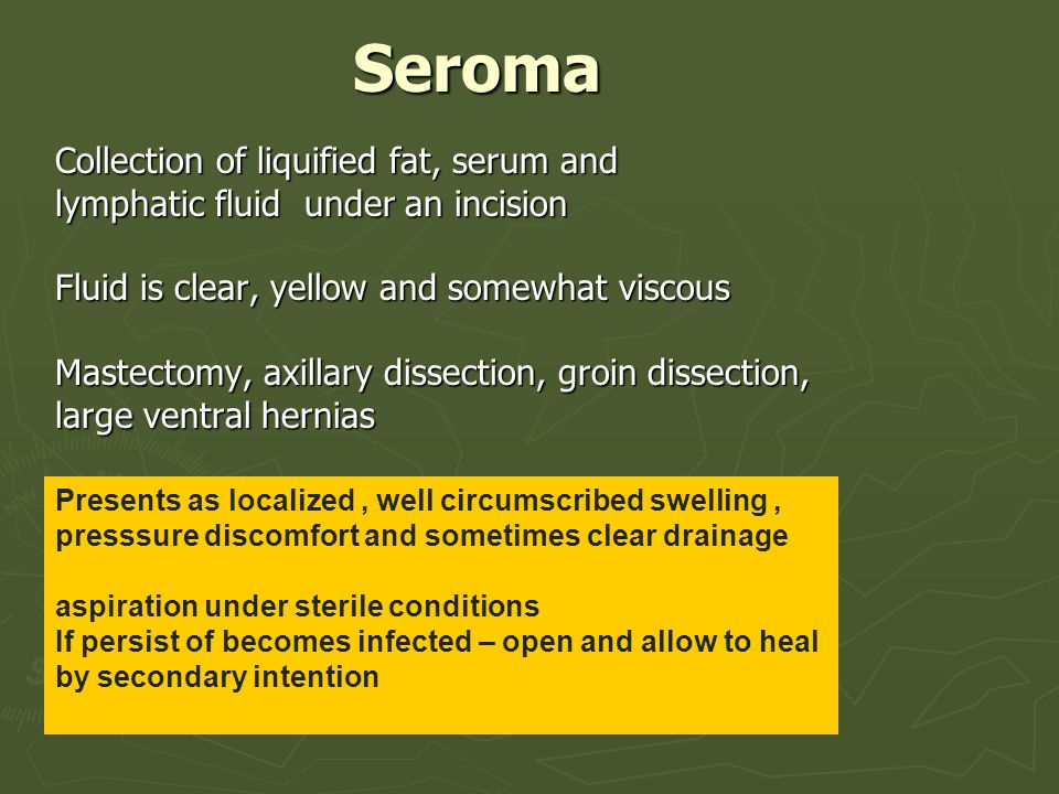 Seroma Collection of liquified fat, serum and
