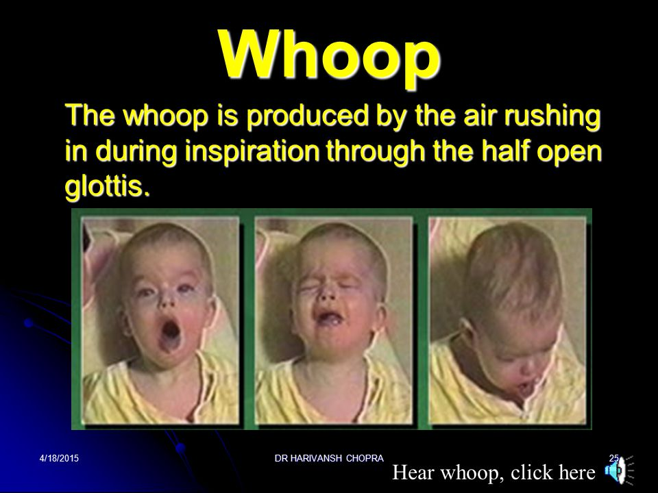 Whoop The whoop is produced by the air rushing in during inspiration through the half open glottis.