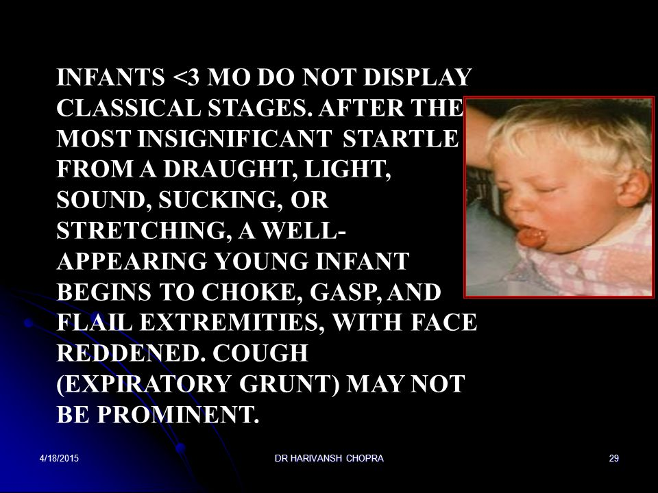 Infants <3 mo do not display classical stages