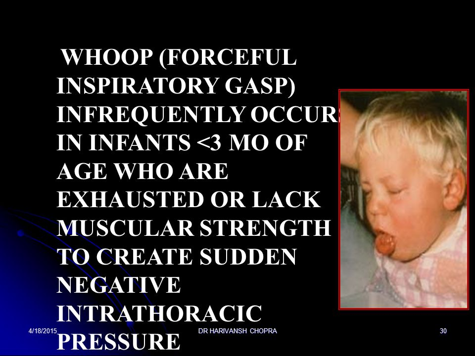 Whoop (forceful inspiratory gasp) infrequently occurs in infants <3 mo of age who are exhausted or lack muscular strength to create sudden negative intrathoracic pressure