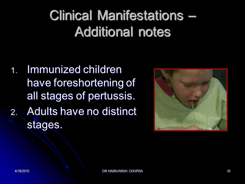 Clinical Manifestations – Additional notes