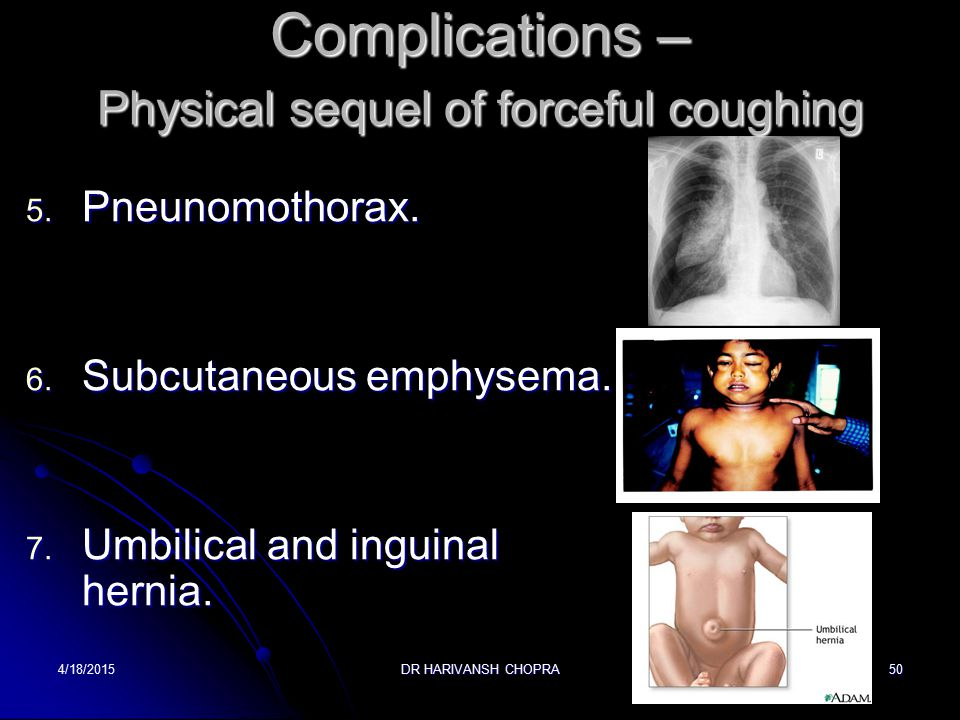 Complications – Physical sequel of forceful coughing