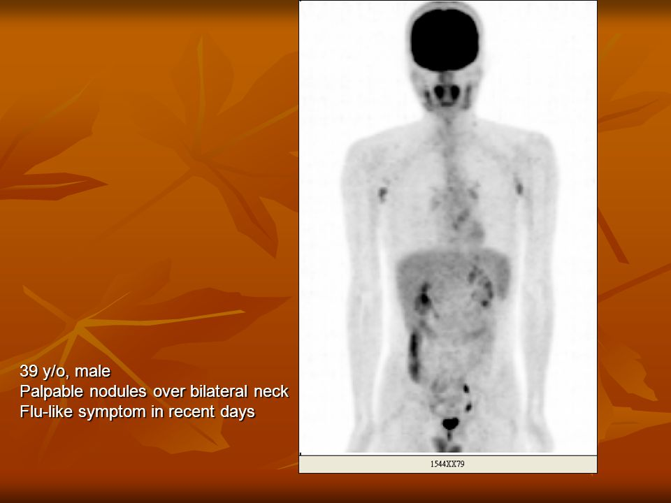 39 y/o, male Palpable nodules over bilateral neck Flu-like symptom in recent days
