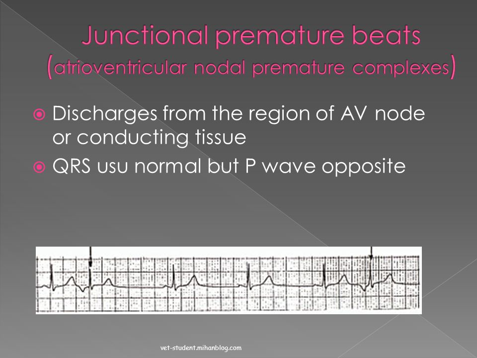 Junctional premature beats (atrioventricular nodal premature complexes)