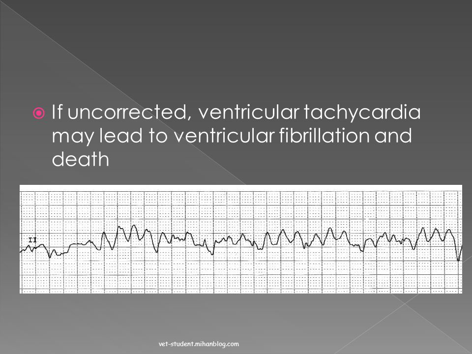 If uncorrected, ventricular tachycardia may lead to ventricular fibrillation and death