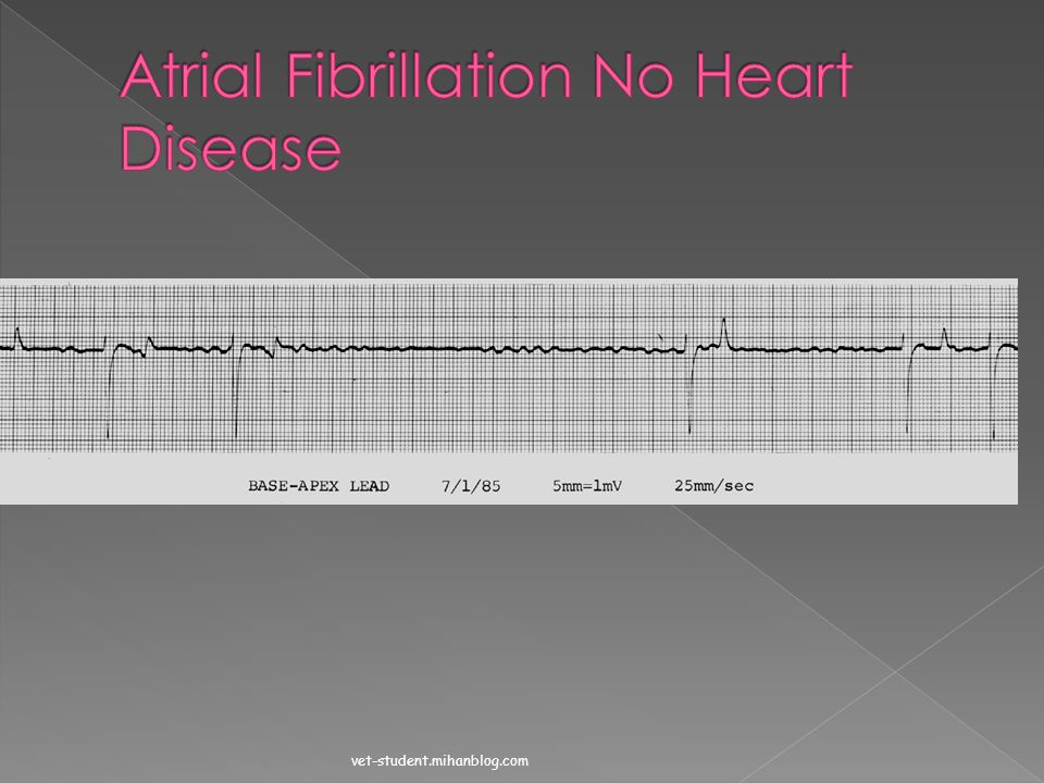 Atrial Fibrillation No Heart Disease