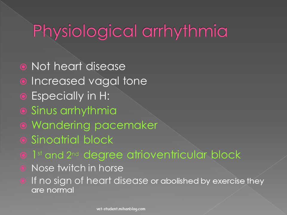 Physiological arrhythmia