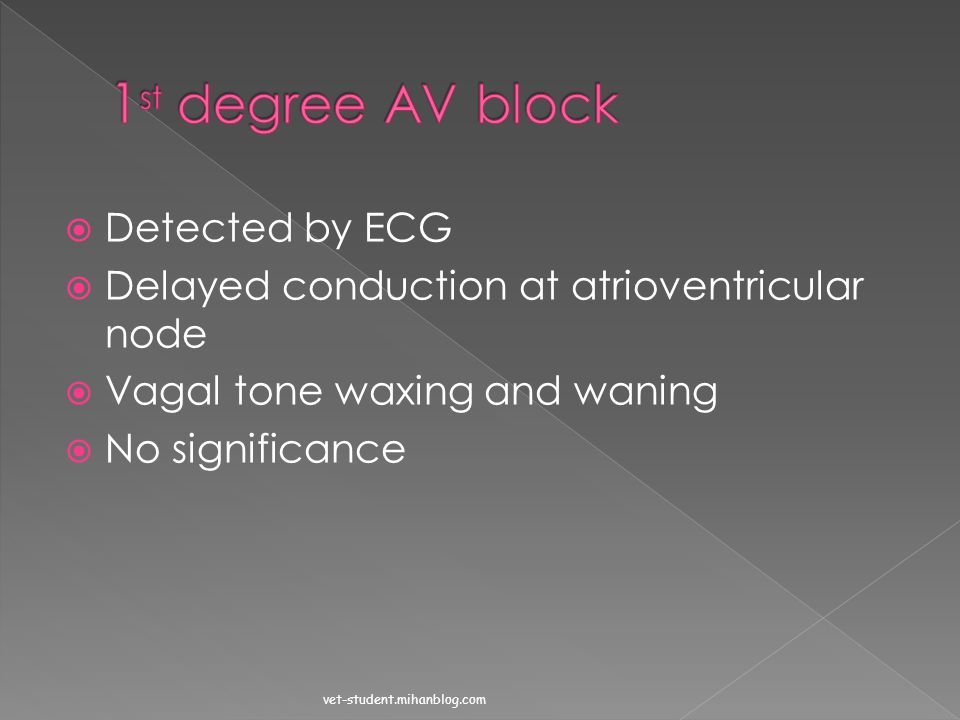 1st degree AV block Detected by ECG