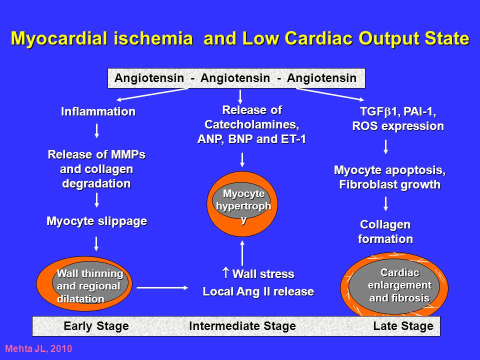 Myocardial ischemia and Low Cardiac Output State
