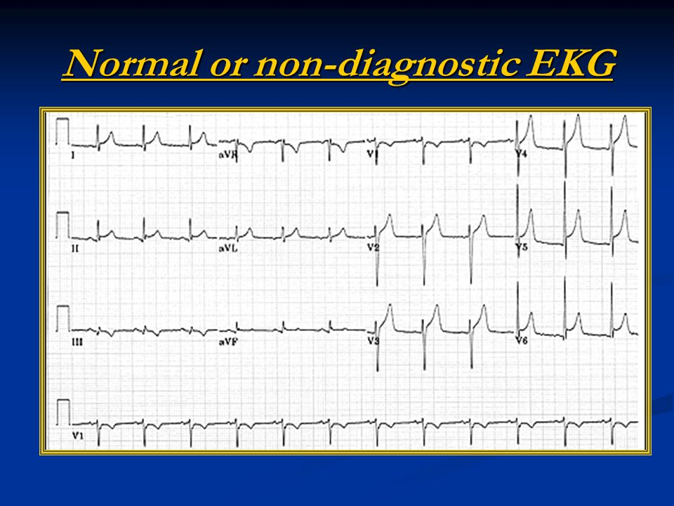 Normal or non-diagnostic EKG