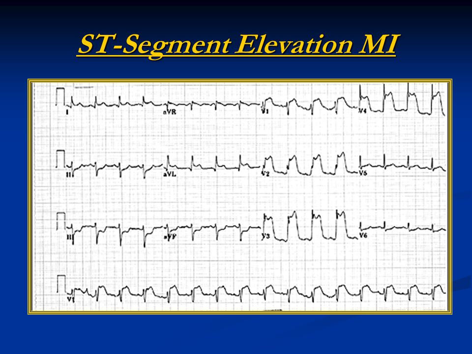 ST-Segment Elevation MI