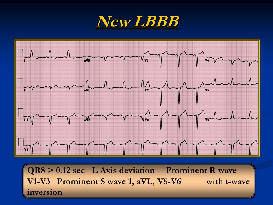 New LBBB QRS > 0.12 sec L Axis deviation Prominent R wave V1-V3 Prominent S wave 1, aVL, V5-V6 with t-wave inversion.