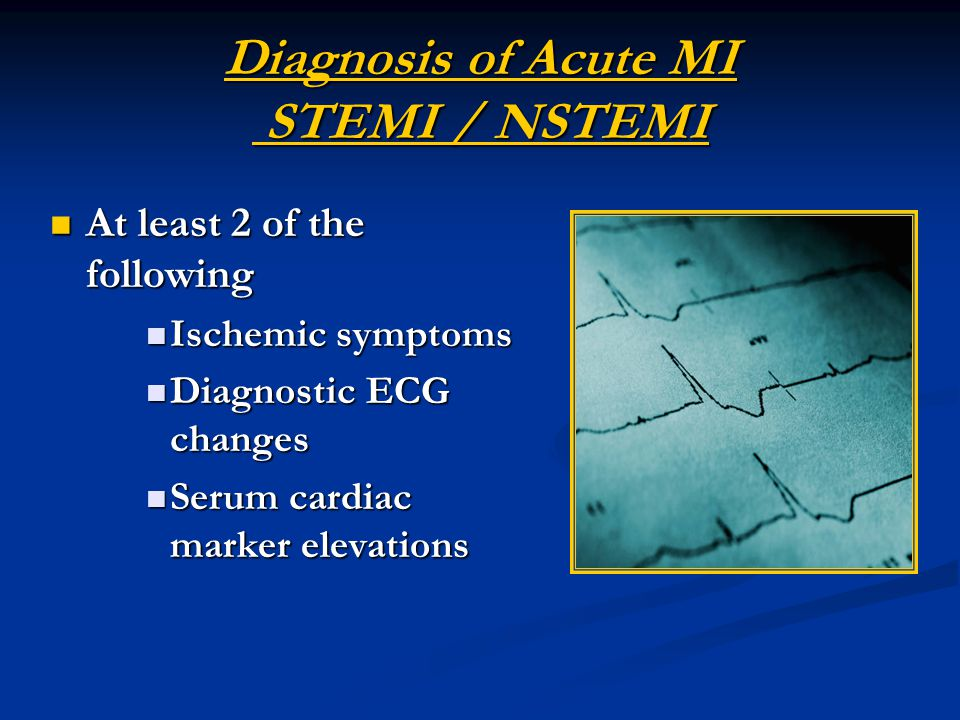 Diagnosis of Acute MI STEMI / NSTEMI