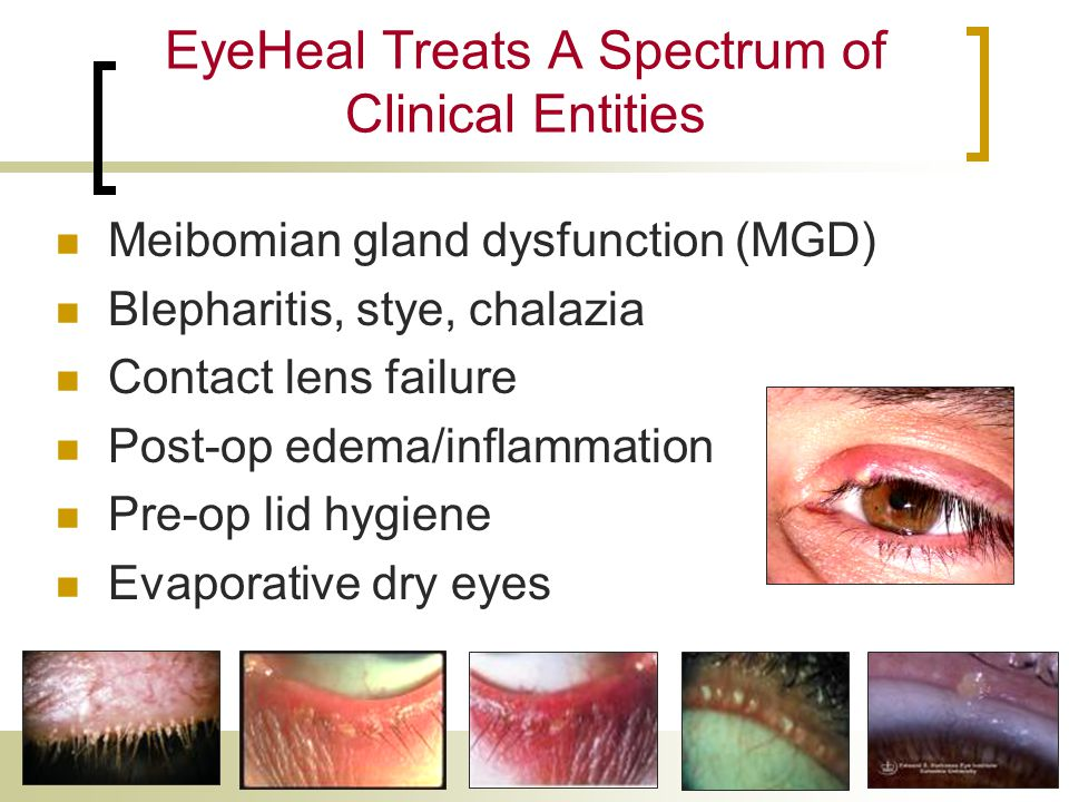 EyeHeal Treats A Spectrum of Clinical Entities