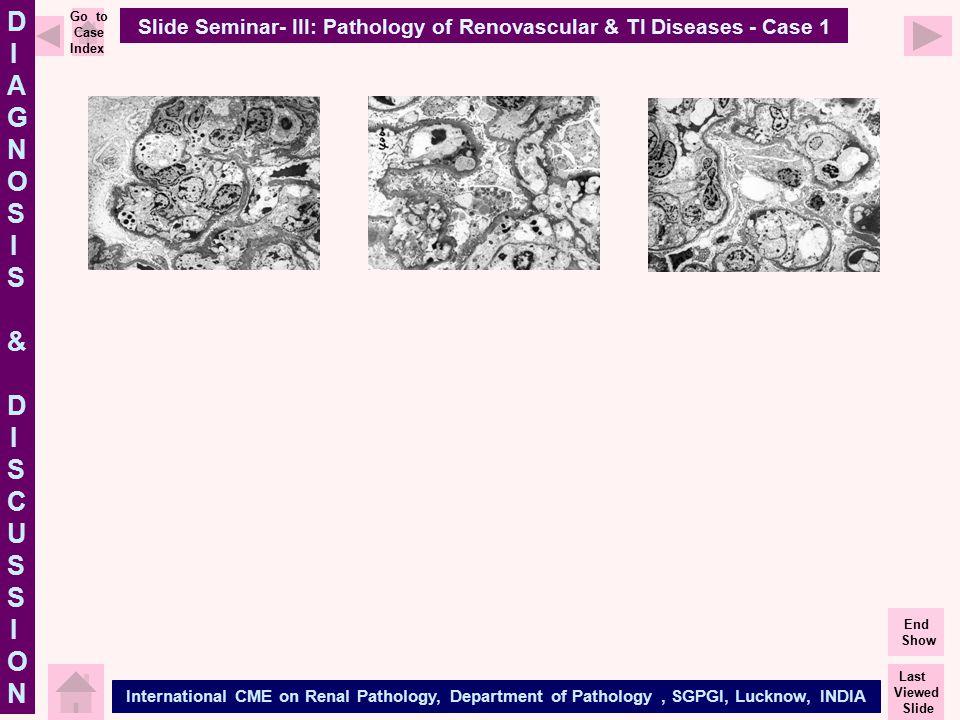 Slide Seminar- III: Pathology of Renovascular & TI Diseases - Case 1